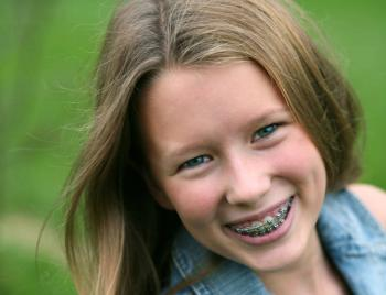 Kind orthodontie 2